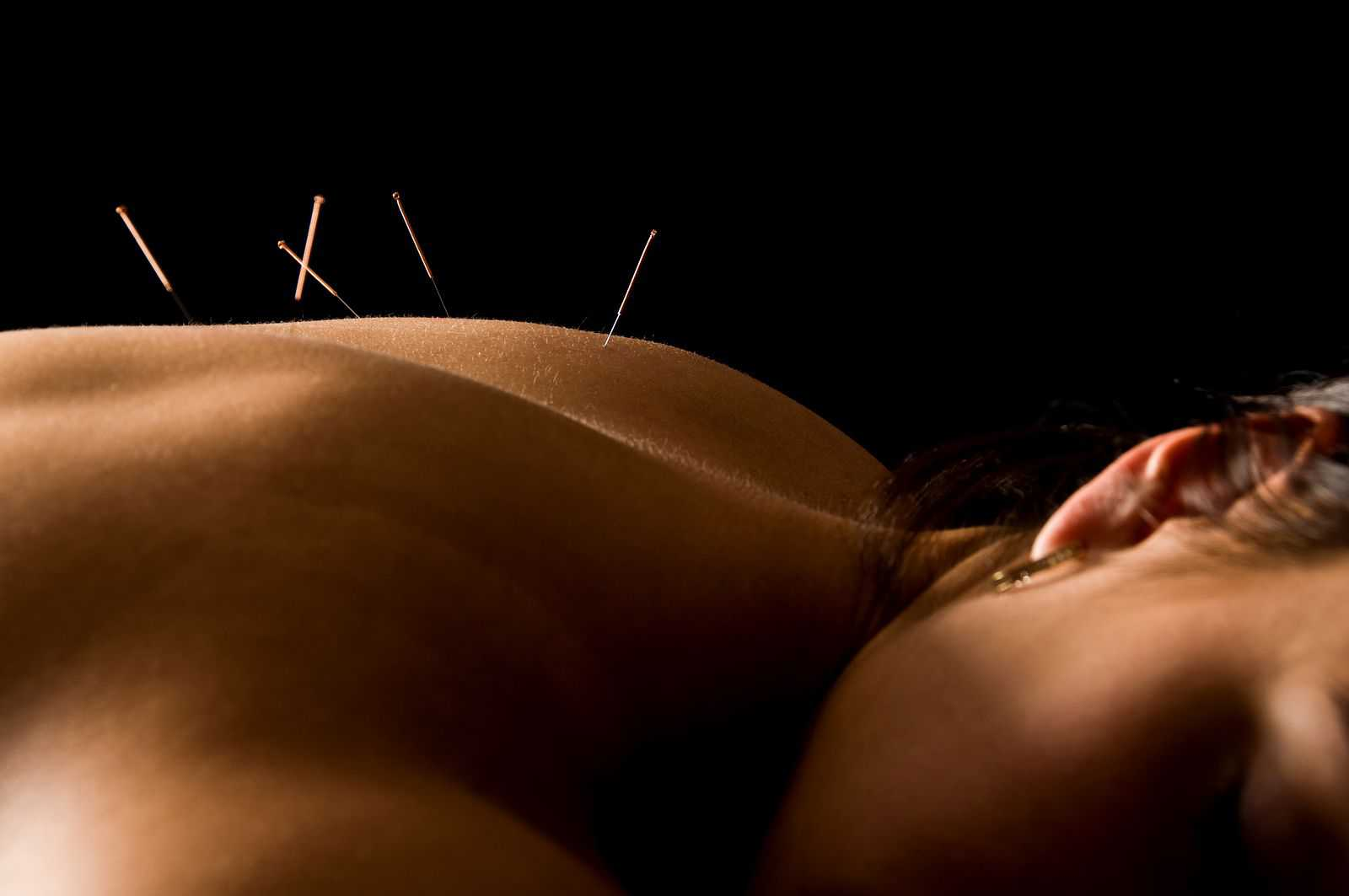 Life Chiropractic and Acupuncture - Acupuncture